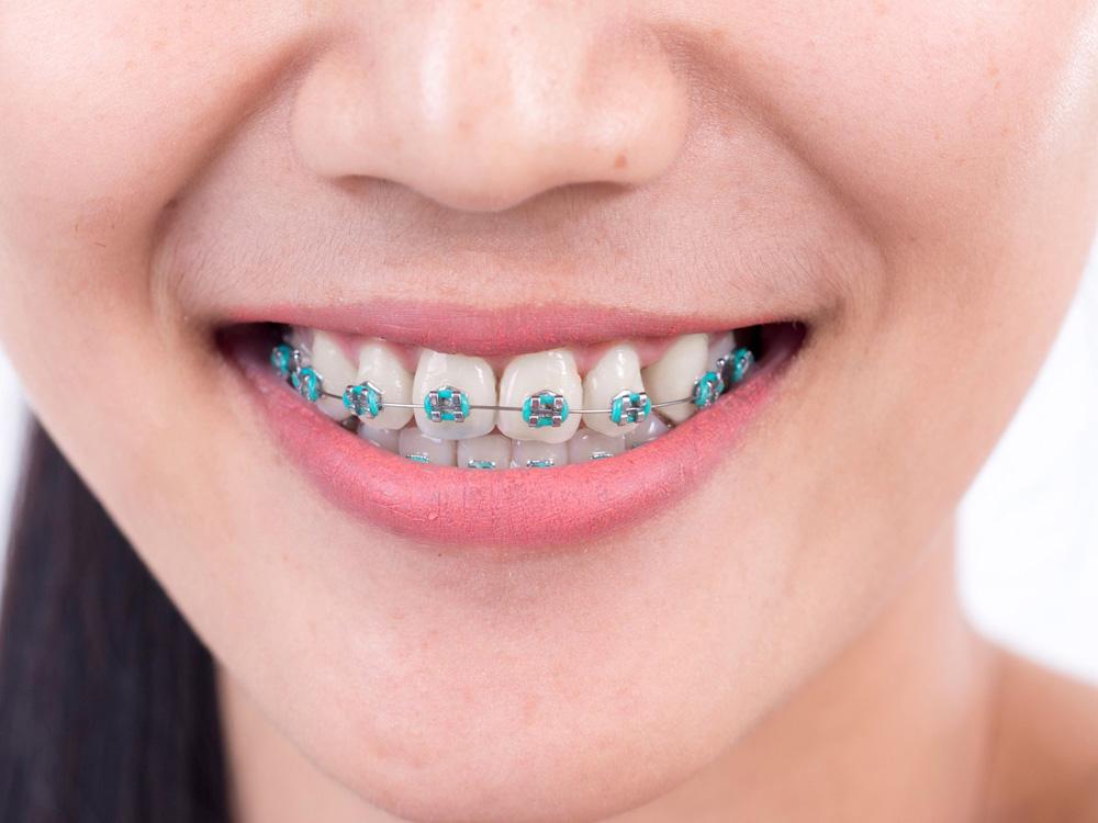 braces in orlando