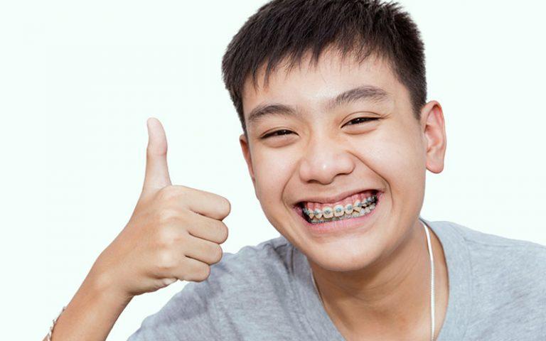 ceramic braces near you