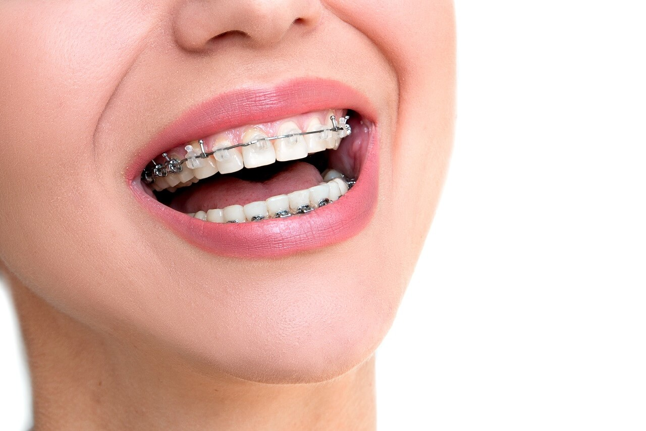 Four Types of Braces for Straightening Your Teeth