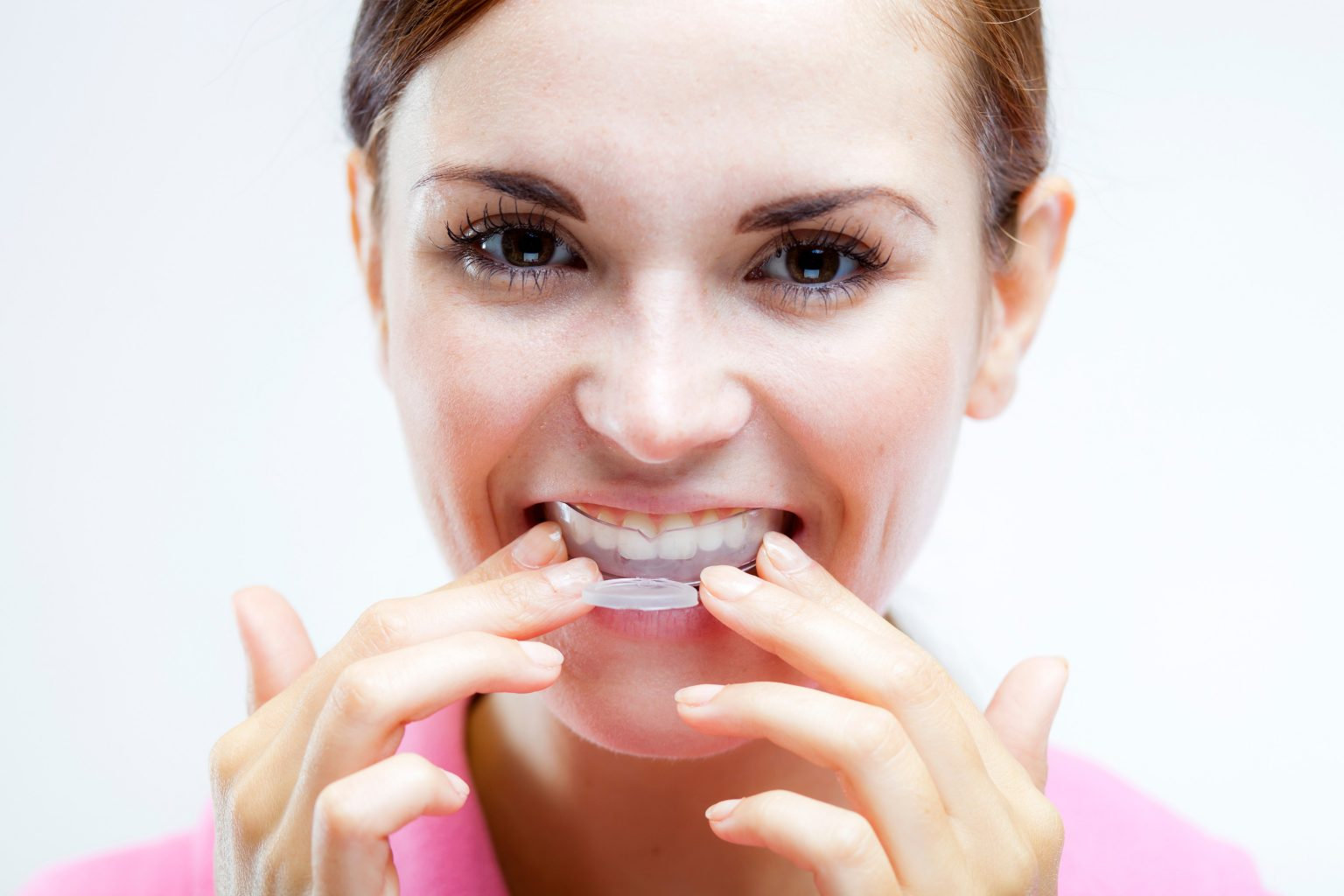 Eight Not So Crazy Questions About Living With Invisalign
